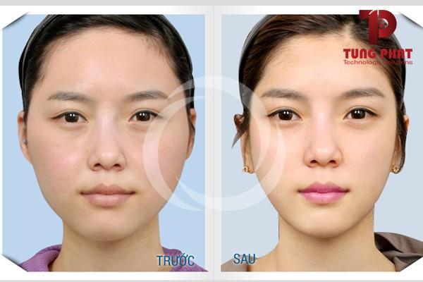 Hình ảnh trước và sau khiến quảng cáo facebook không được phê duyệt